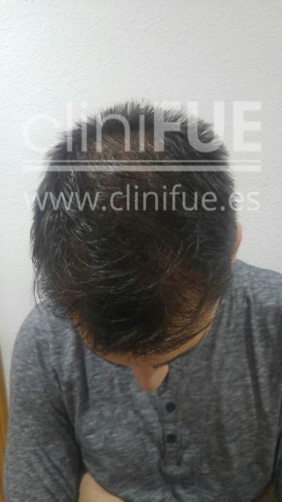 Guillermo 26 Murcia trasplante capilar turquia 6 meses
