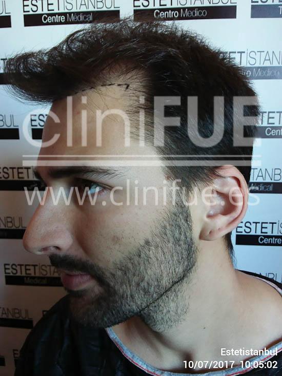 Guillermo 26 Murcia trasplante capilar turquia Antes