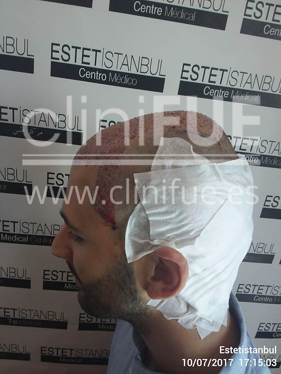 Guillermo 26 años Murcia trasplante capilar turquia Dia Operacion