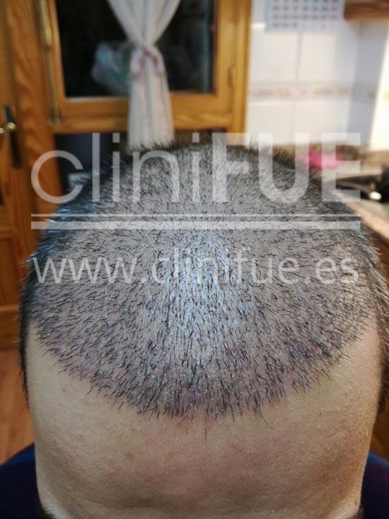 Javier 33 años Elche trasplante capilar turquia 1 mes