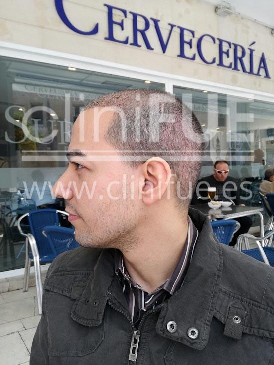 Javier 33 años Elche trasplante capilar turquia 15 dias