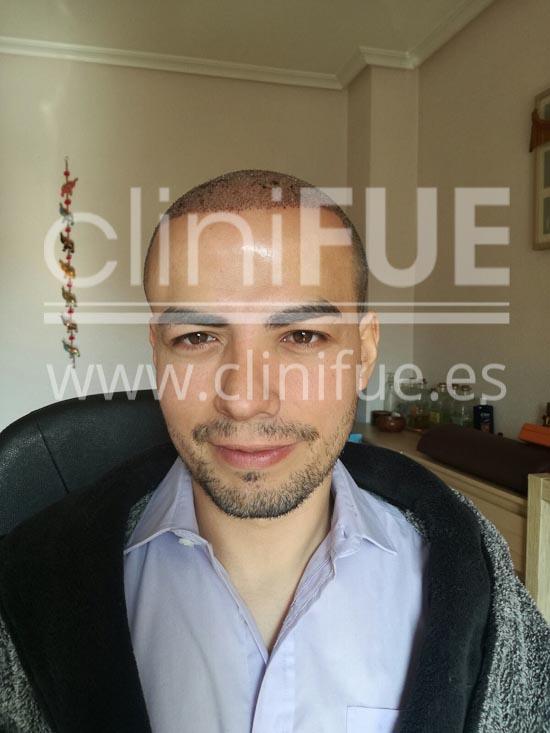 Javier 33 años Elche trasplante capilar turquia 3 días