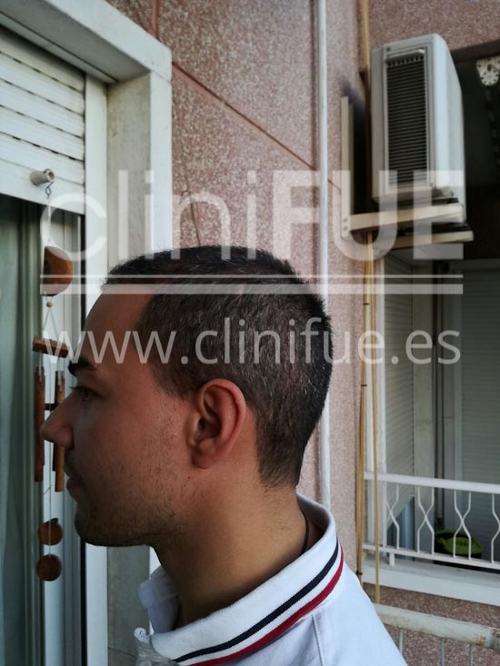Javier 33 años Elche trasplante capilar turquia 4 meses