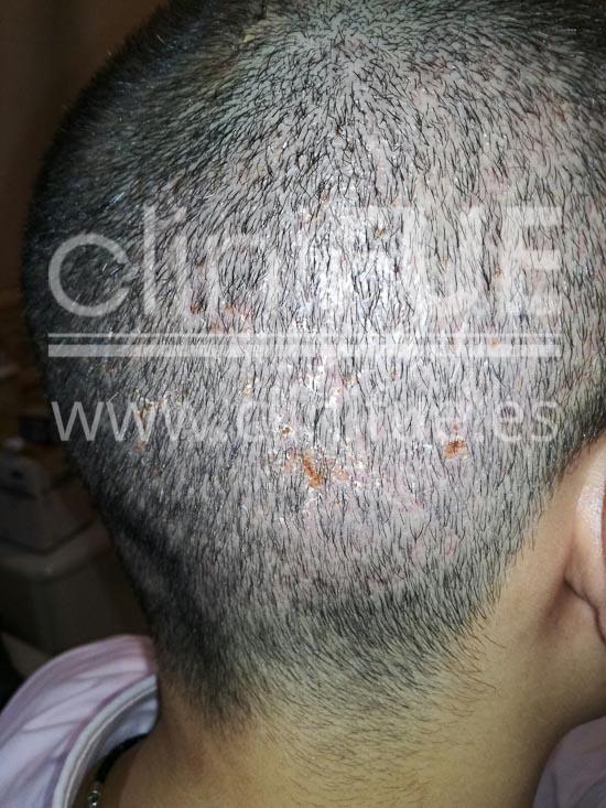 Javier 33 años Elche trasplante capilar turquia 7 dias