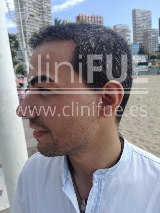 Javier 33 años Elche trasplante capilar turquia 9 meses