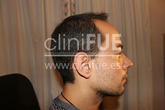 Javier 33 años Elche trasplante capilar turquia Antes