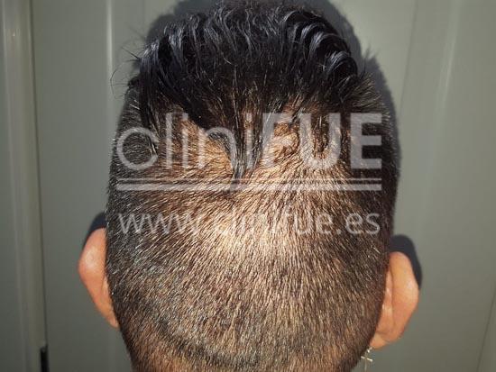 Jonay 31_injerto de pelo_10 meses