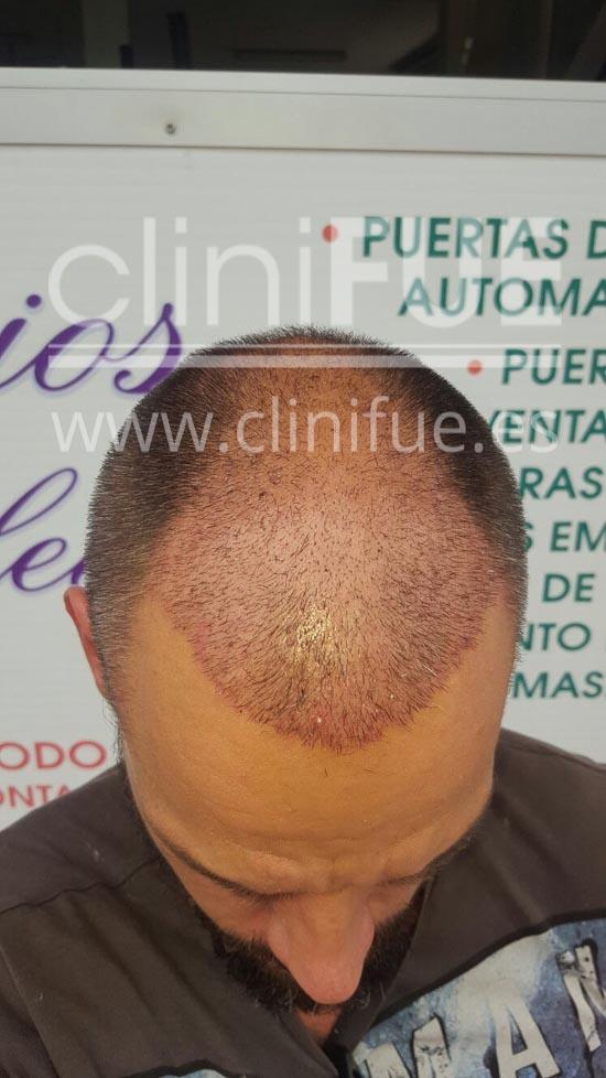 Jonay 31_injerto de pelo_15 dias
