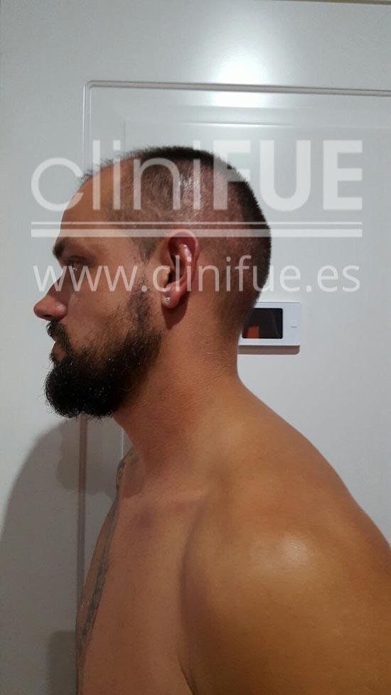Jonay 31_injerto de pelo_1 mes