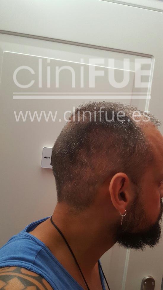 Jonay 31_injerto de pelo_3 meses