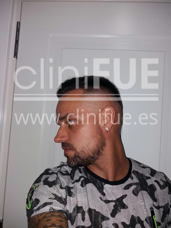 Jonay 31_injerto de pelo_6 meses