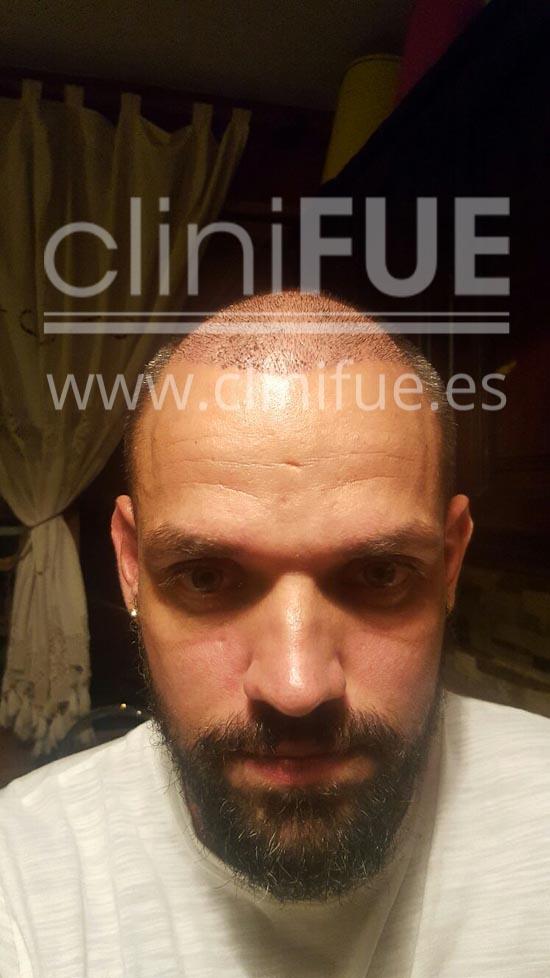 Jonay 31_injerto de pelo_7 dias