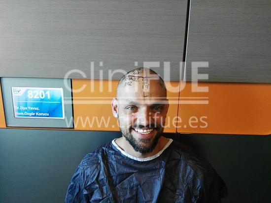 Jonay 31_injerto de pelo_dia operacion