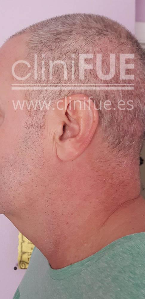 Jorge 49 años Madrid injerto capilar turquia 15 dias