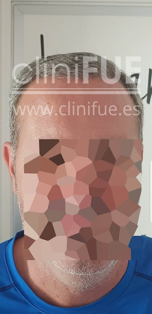 Jorge 49 años Madrid injerto capilar turquia 6 meses