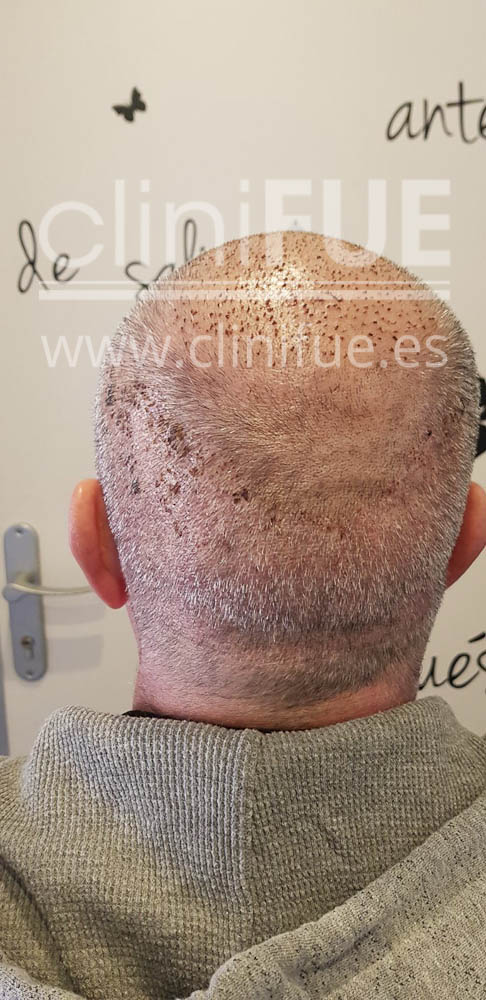 Jorge 49 años Madrid injerto capilar turquia 7 dias