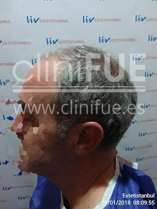 Jorge 49 años Madrid injerto capilar turquia Antes