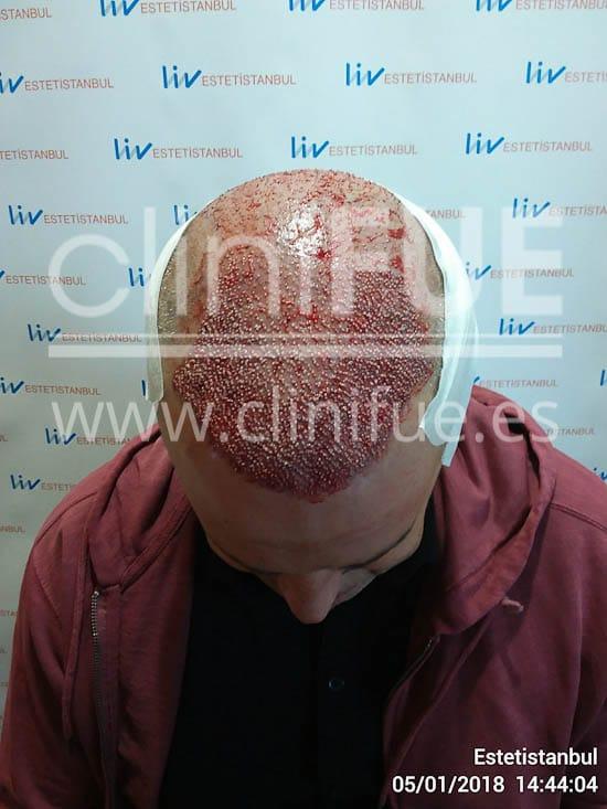 Jorge 49 años Madrid injerto capilar turquia Dia Operacion