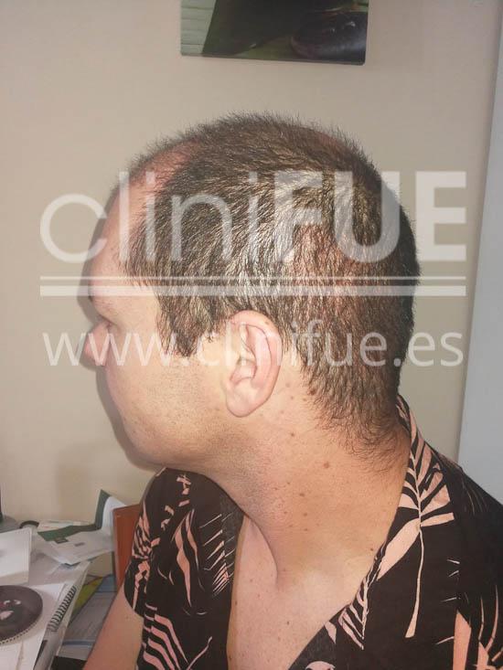 Jose 30 Granada trasplante capilar turquia 1 mes