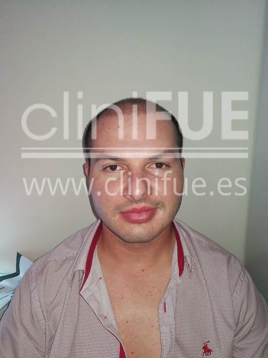 Jose 30 Granada trasplante capilar turquia 15 días