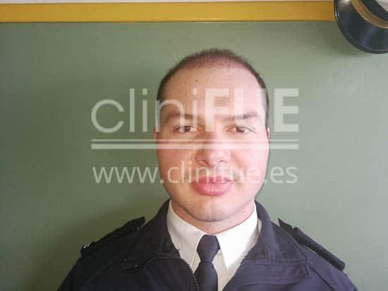 Jose 30 Granada trasplante capilar turquia 3 meses