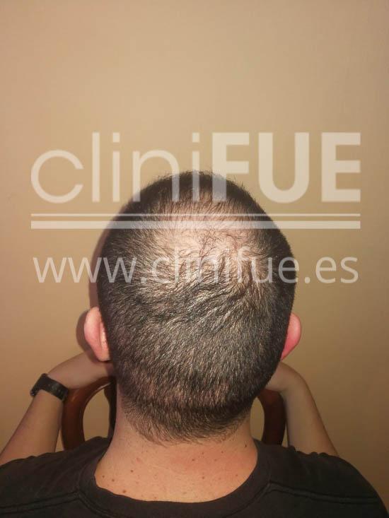 Jose 30 Granada trasplante capilar turquia 6 meses