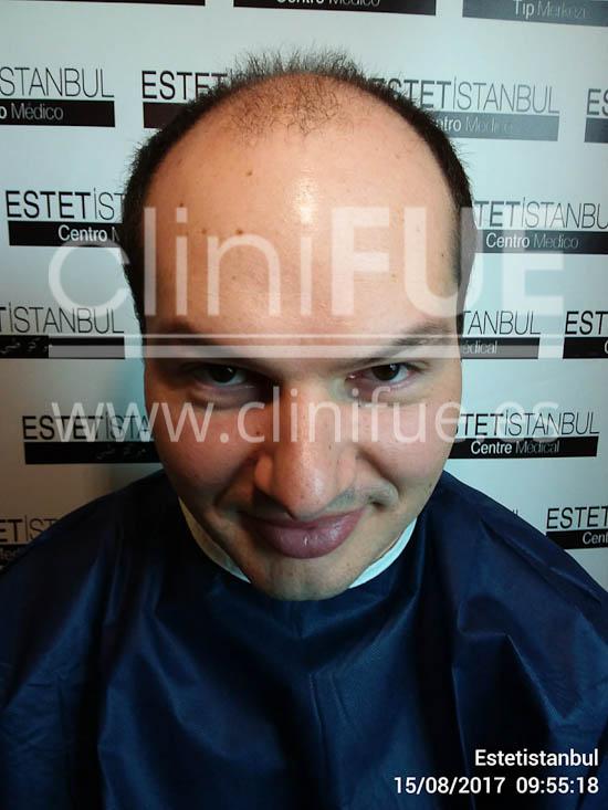 Jose 30 Granada trasplante capilar turquia Antes