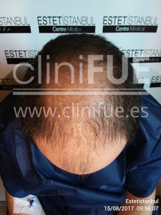 Jose 30 Granada trasplante capilar turquia dia operacion