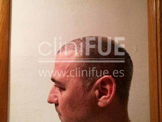 Jose Luis 42 Barcelona injerto pelo turquia 1 mes
