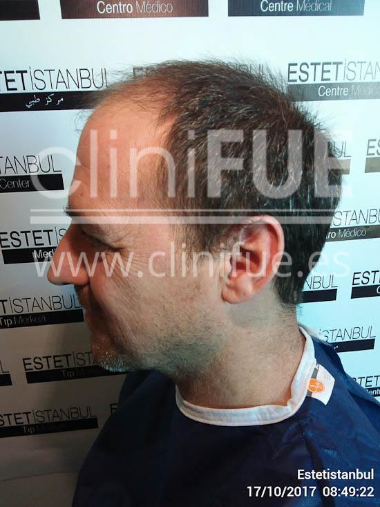 Jose Luis 42 Barcelona injerto pelo turquia antes