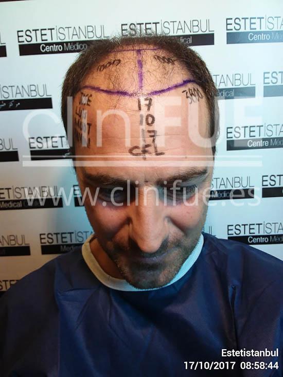 Jose Luis 42 Barcelona injerto pelo turquia dia operacion