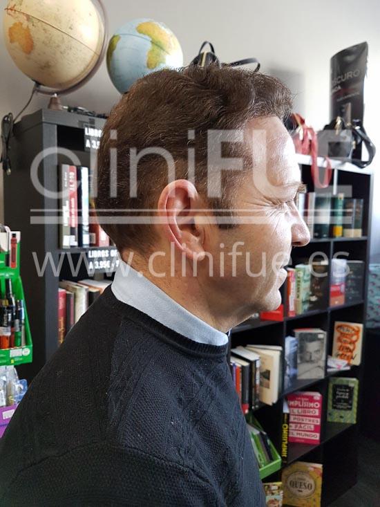 Jose Maria 49 años Caceres injerto de pelo turquia 10 meses