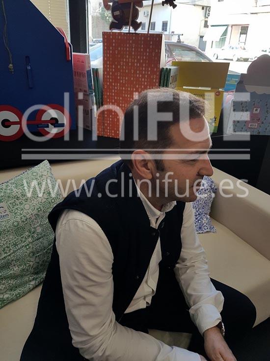 Jose Maria 49 años Caceres injerto de pelo turquia 6 meses