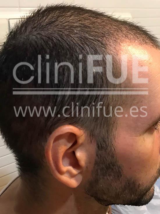 Jose Iñaki 34 Alicante trasplante de pelo turquia 1 mes