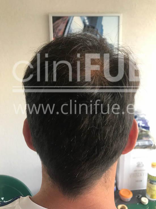 Jose Iñaki 34 Alicante trasplante de pelo turquia 12 meses