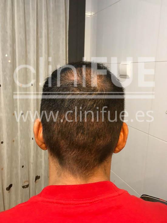 Jose Iñaki 34 Alicante trasplante de pelo turquia 3 meses