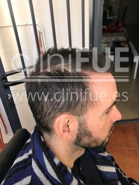 Jose Iñaki 34 Alicante trasplante de pelo turquia 6 meses