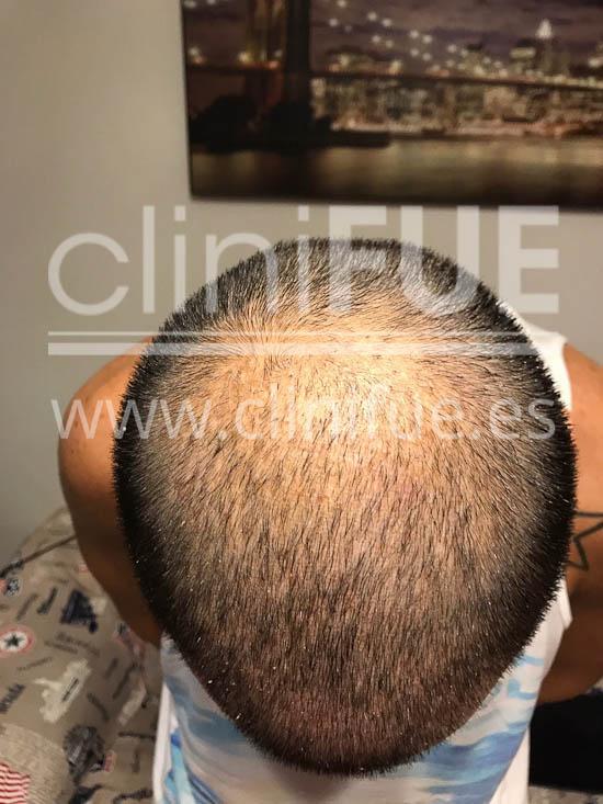Jose Iñaki 34 Alicante trasplante de pelo turquia 7 dias