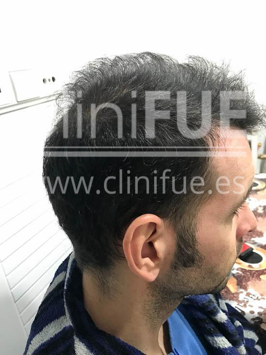 Jose Iñaki 34 Alicante trasplante de pelo turquia 9 meses