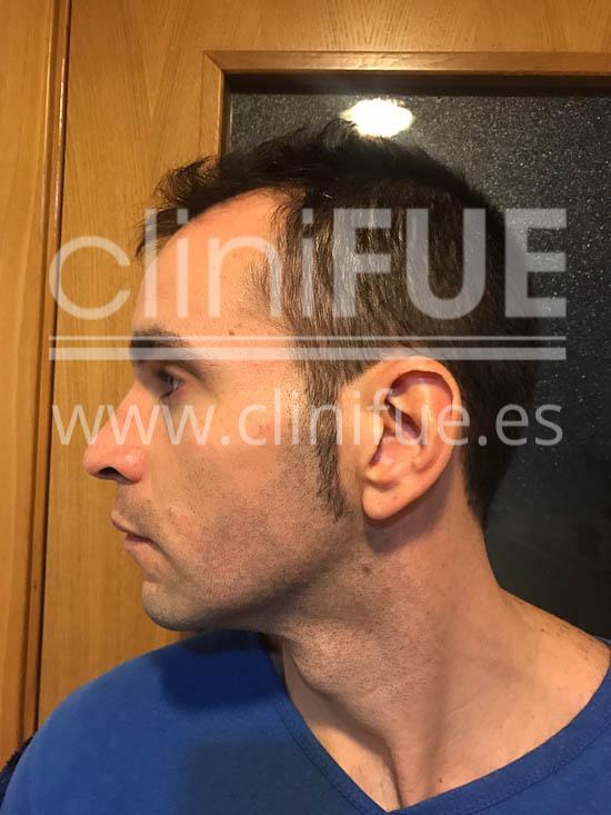 Jose Iñaki 34 Alicante trasplante de pelo turquia Antes