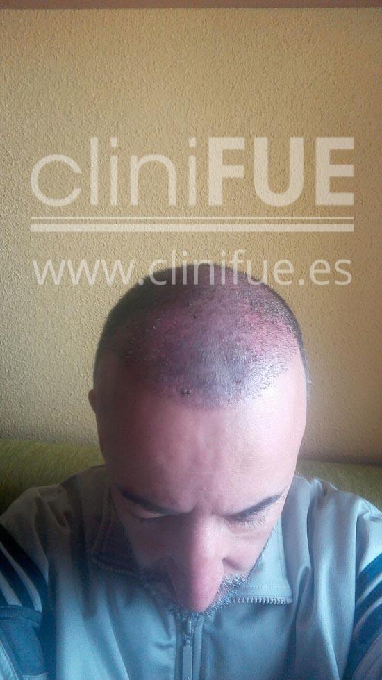 Juan Manuel implante capilar Turquia 15 días