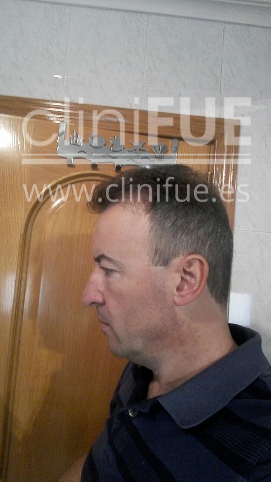 Juan Manuel implante capilar Turquia 7 meses