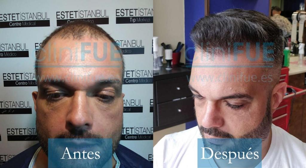 Roberto 40 Gran Canaria trasplante de pelo