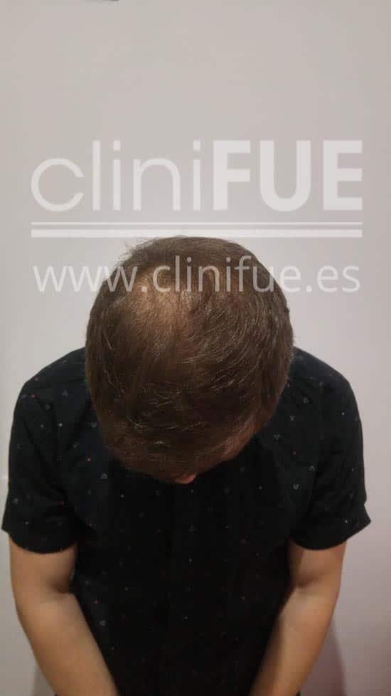 Rudy 37 Teruel trasplante capilar turquia 12 meses