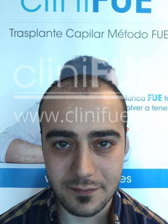 Sinan 29 Estambul trasplante capilar turquia 1 mes