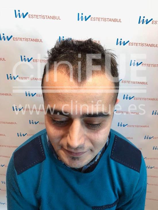 Sinan 29 Estambul trasplante capilar turquia 3 meses