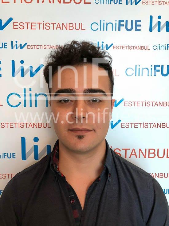 Sinan 29 Estambul trasplante capilar turquia 9 meses