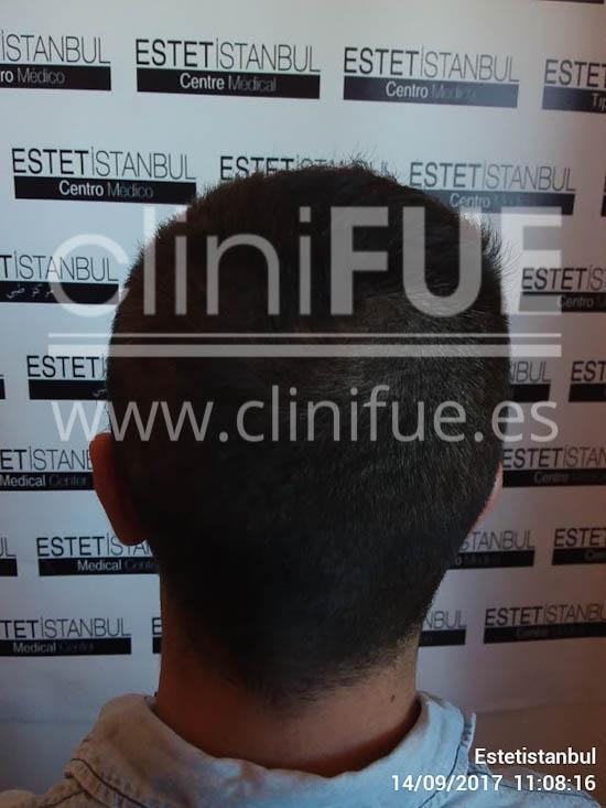 Sinan 29 Estambul trasplante capilar turquia Antes