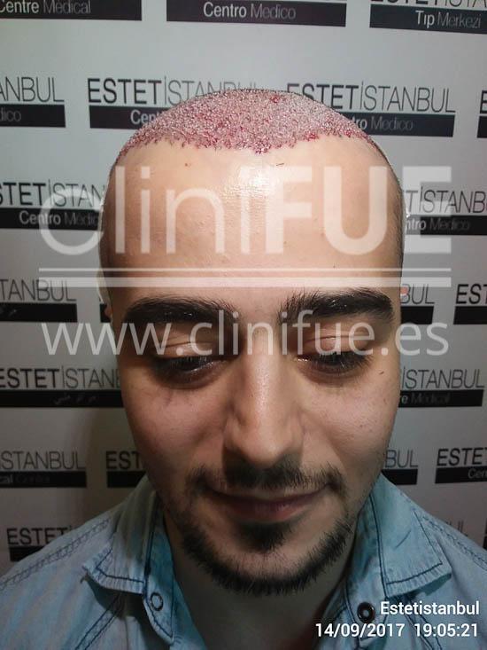 Sinan 29 Estambul trasplante capilar turquia Dia Operacion