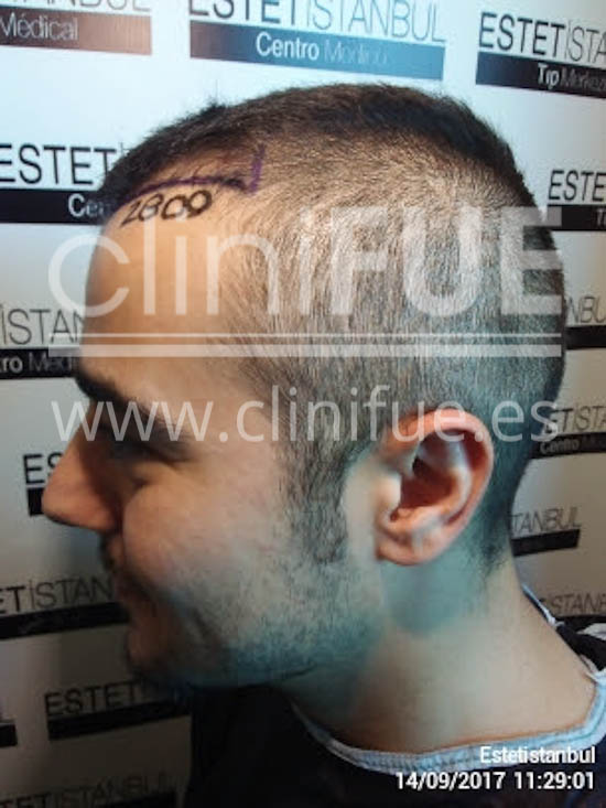 Sinan 29 Estambul trasplante capilar turquia diseño